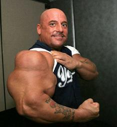 can steroids kill you